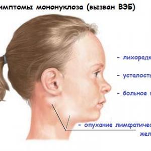 Вирус Эпштейна Барра симптомы у детей