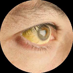 Синдром Жильбера лечить